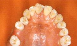 全てセラミック製の歯とワックスの顎模型の画像