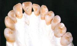 全てセラミック製の歯とセラミック粘土製の顎見本の画像