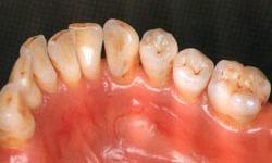 全てセラミック製の歯とワックス製の顎模型の画像