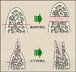 仮骨延長法による歯槽骨形成の画像