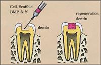 デンチンBMPを用いた象牙質再生の画像