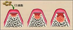 歯胚の再生の画像